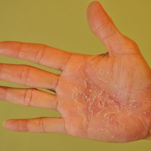 Schuppenflechte der Hand