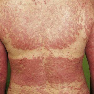 Photoallergisches Ekzem und Antibiotika