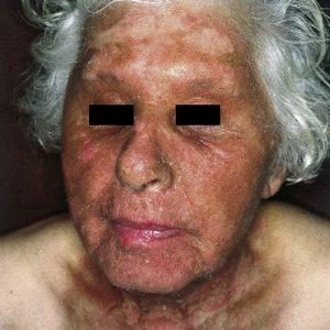 Phototoxische Dermatitis und Kosmetikum